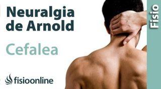 Dolor de cabeza o cefalea por neuralgia de arnold.