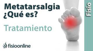 Metatalsargia. Tratamiento mediante ejercicios, auto masajes y estiramientos