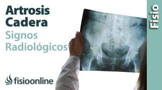 Artrosis de cadera. Signos radiológicos.
