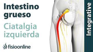 Ciática o ciatalgia izquierda y su relación con el intestino grueso y colón irritable