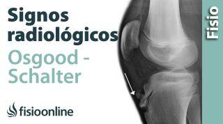 Enfermedad de Osgood-Schlatter o Crecederas. Signos radiológicos.