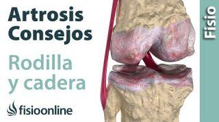 Artrosis de rodilla o de cadera. Cosas que debes saber.