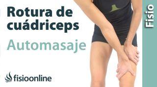 3.Auto-masaje para las roturas de fibras del recto anterior del cuádriceps.