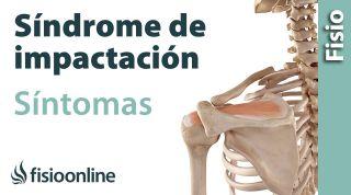 1 Síndrome de impactación o impigment. Qué es, causas, síntomas y tratamiento.