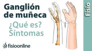 11# Ganglión de muñeca o muñeca abierta. Qué es, causas, síntomas y tratamiento.