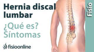 25 Hernia discal o de disco lumbar. Qué es, causas, síntomas y tratamiento.