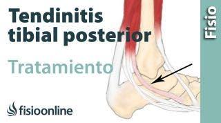 Tendinitis del tibial posterior