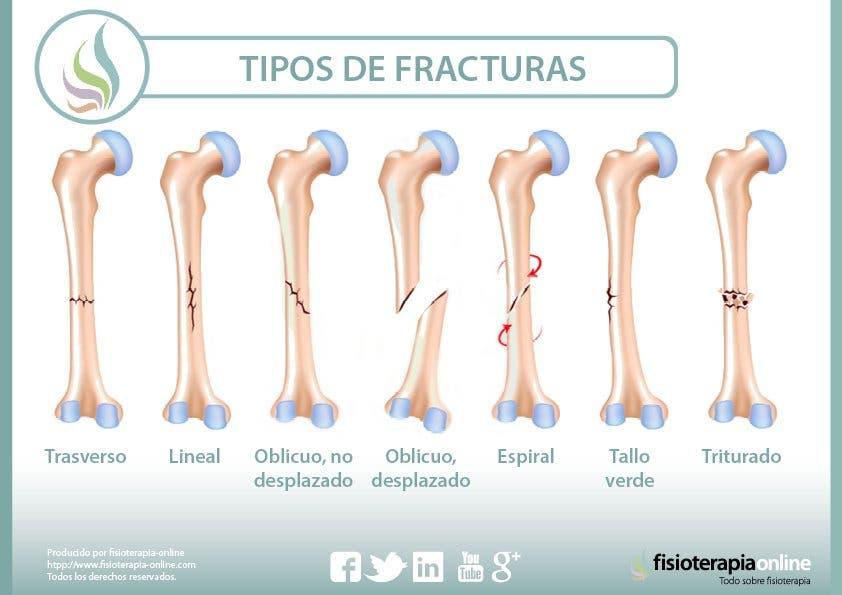 Cómo diagnosticar una fractura ósea