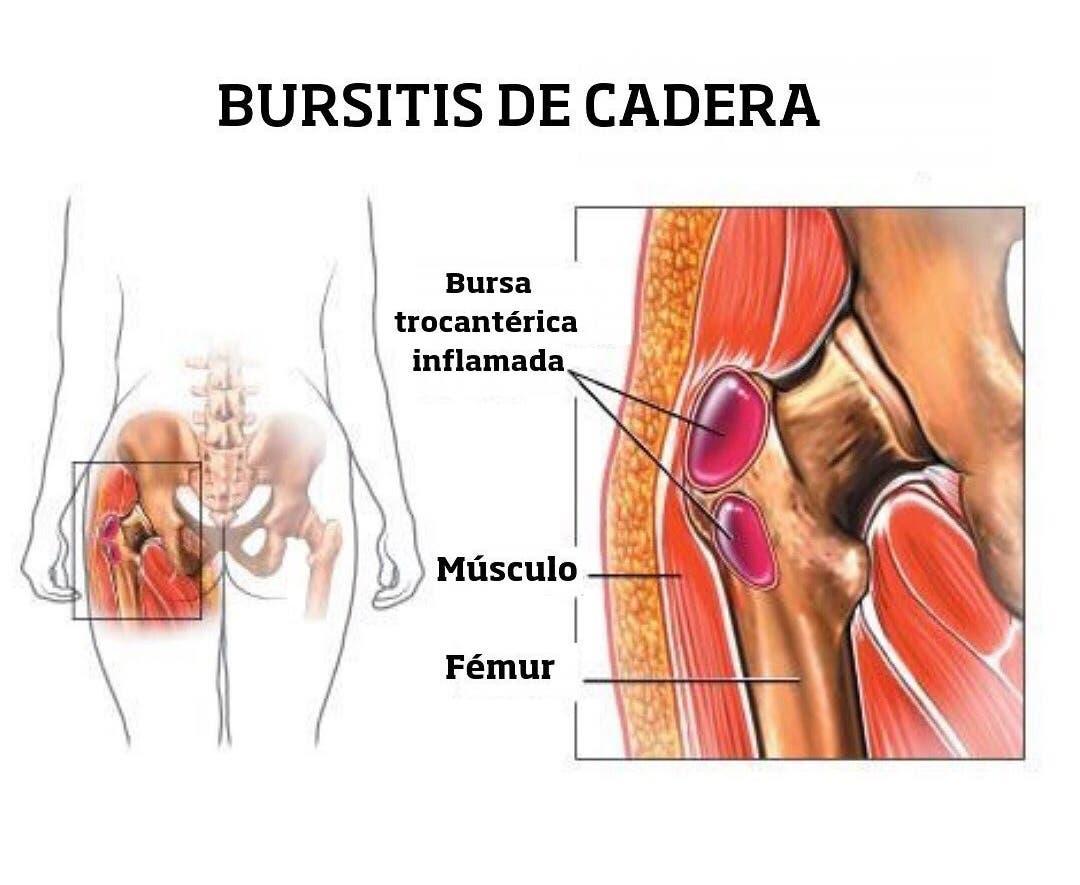 Diagnóstico de la trocanteritis o bursitis trocantérea