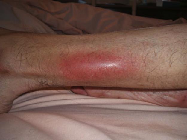 flebitis-tratamiento-dolor--pierna
