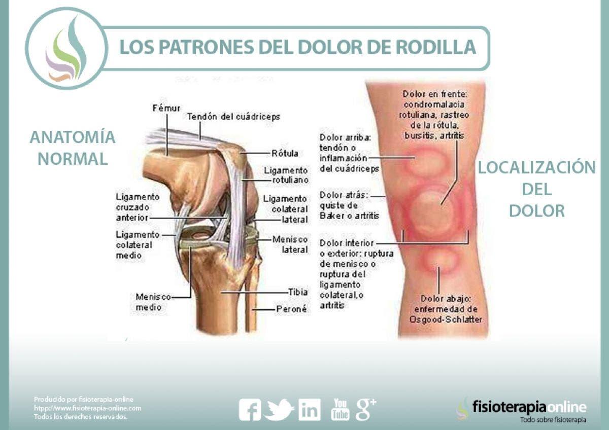 Los patrones del dolor de rodilla o gonalgia y las lesiones más ...