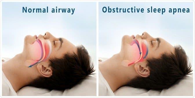 apneas nocturnas o del sueño