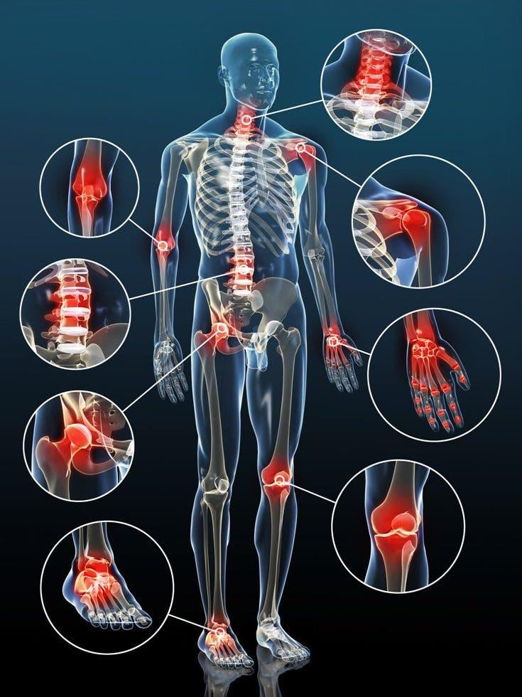 En qué articulaciones es más frecuente encontrar artrosis