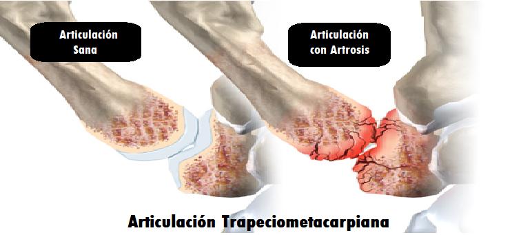diferencia de una articulación sana con una con artrosis de pulgar