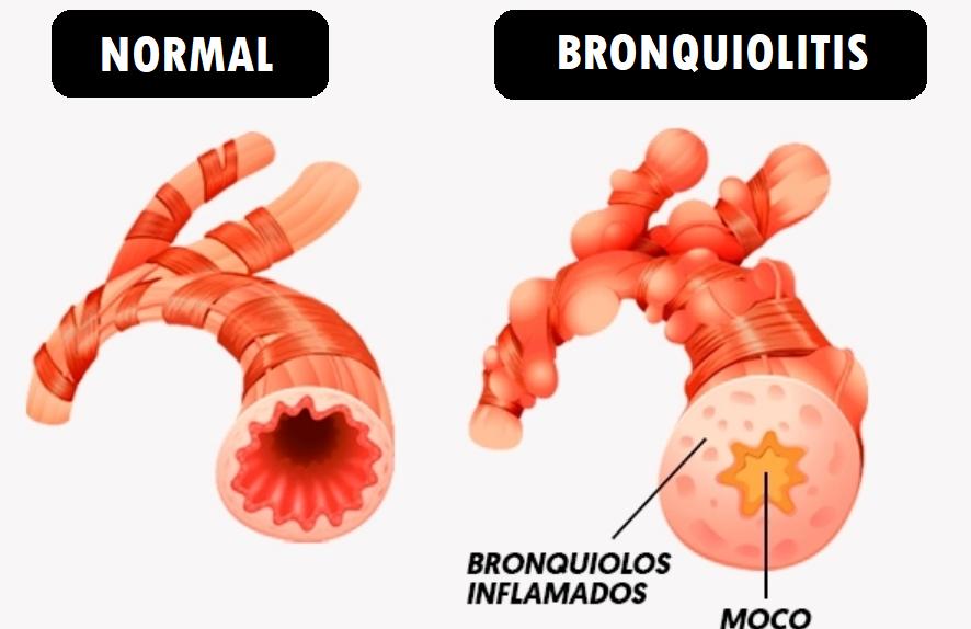 bronquiolos sanos y con bronquiolitis