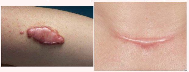 fisioterapia dermatofuncional, tratamiento de cicatrices y queloides