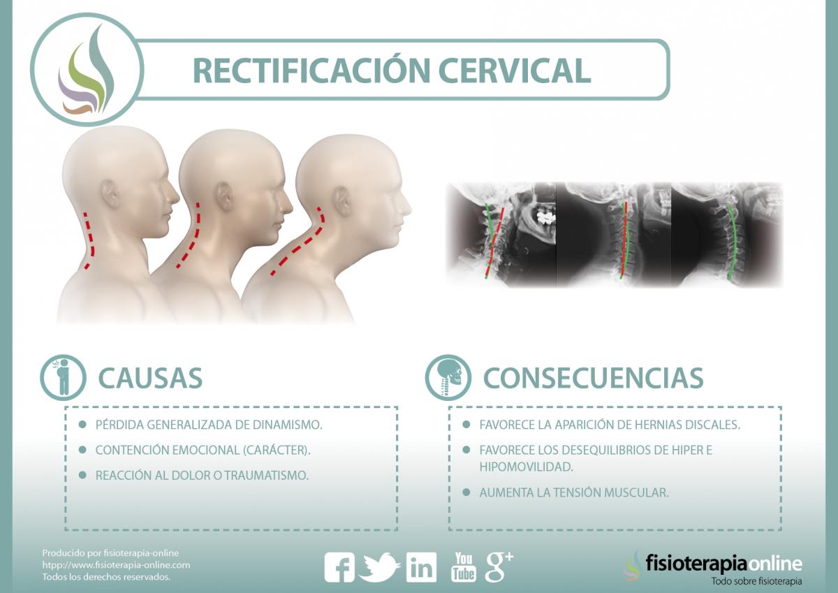 causas y consecuencias de la rectificación cervical