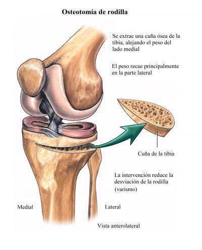 Cirugía de valgo y varo de rodilla