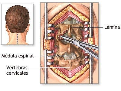 Cirugía de hernia discal cervical
