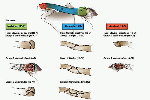 clasificación para fracturas de clavícula de la AO/OTA
