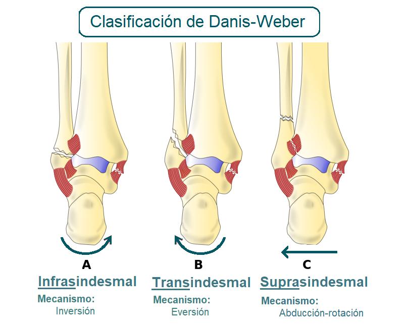 Clasificación de las fracturas distales de peroné