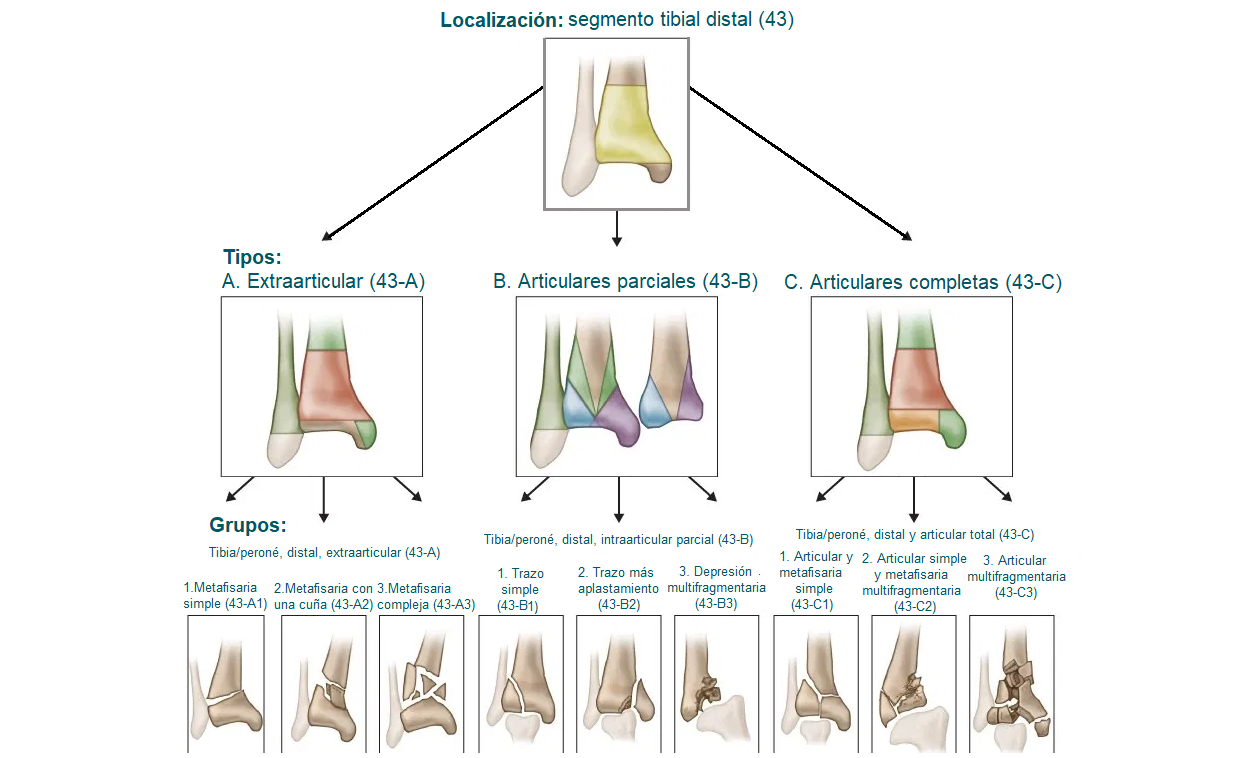 Clasificación de las fracturas distales de tibia
