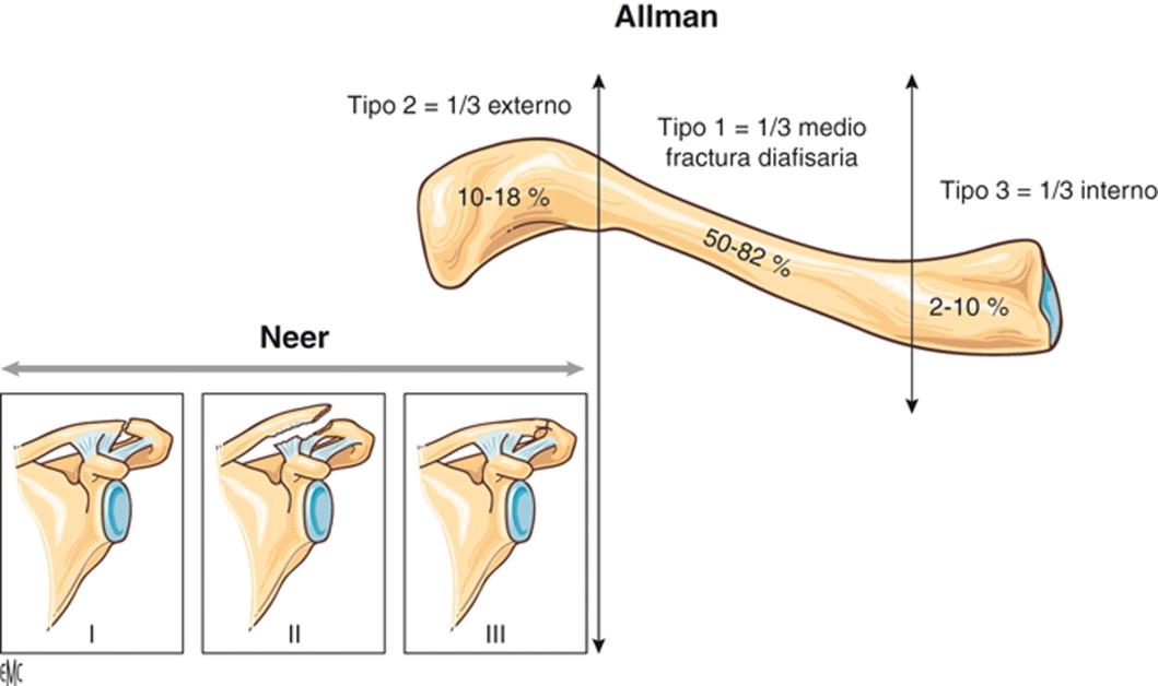 clasificaciones propuestas por Allman y Neer