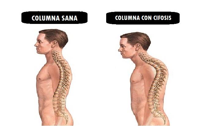 columna sana y columna con cifosis