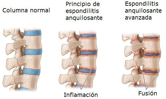 Cómo se desarrolla la espondilitis anquilosante