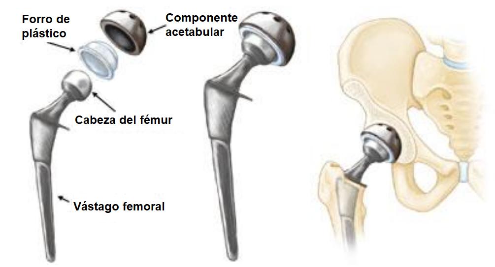 componente de la prótesis de cadera