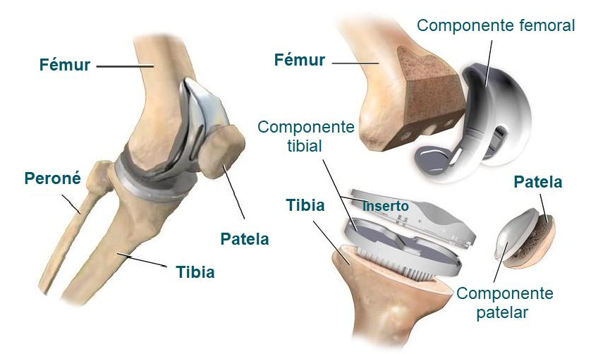 Componente de la prótesis de rodilla