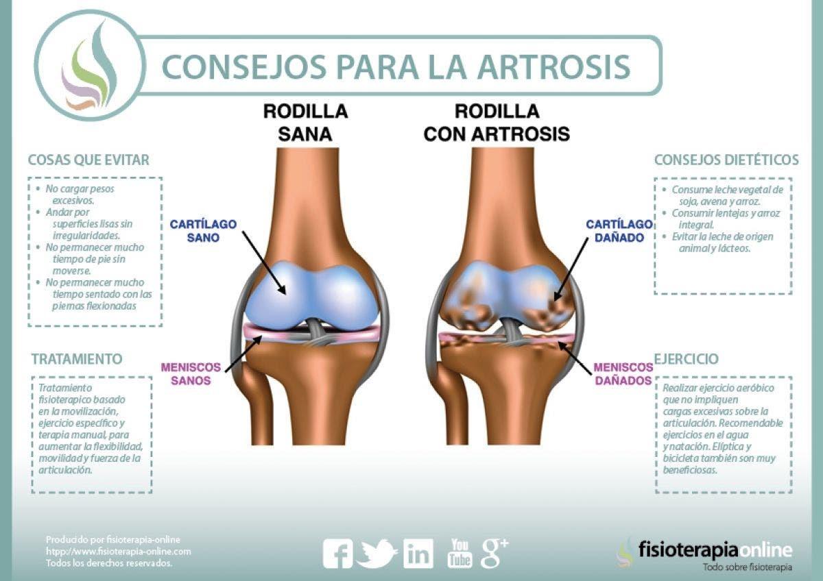 consejos para la artrosis