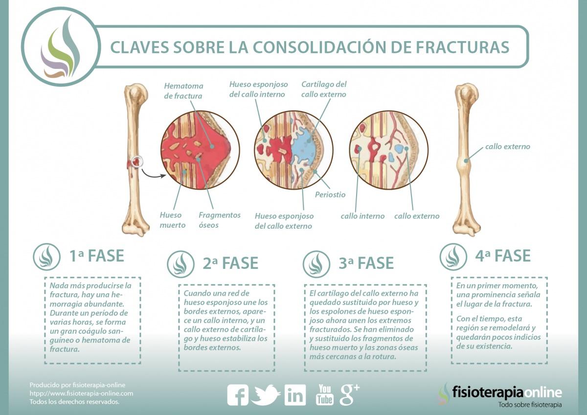 Proceso de consolidación de una fractura ósea