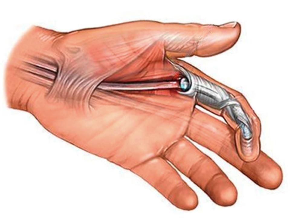 Cirugía del dedo en gatillo o resorte