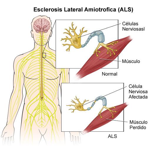 desarrollo esclerosis amiotrofica