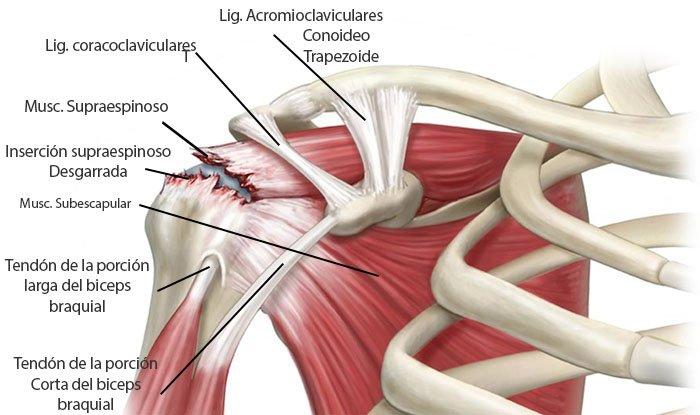 desgarro muscular en el brazo derecho