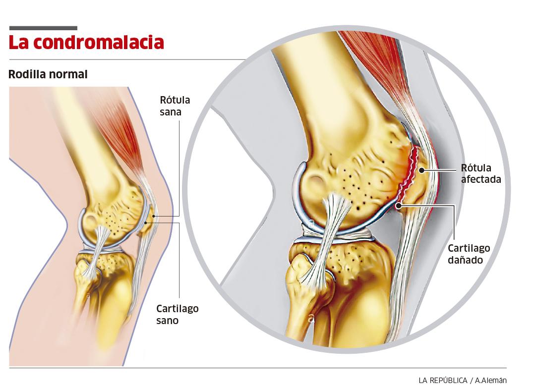 Cómo diagnosticar la condromalacia rotuliana