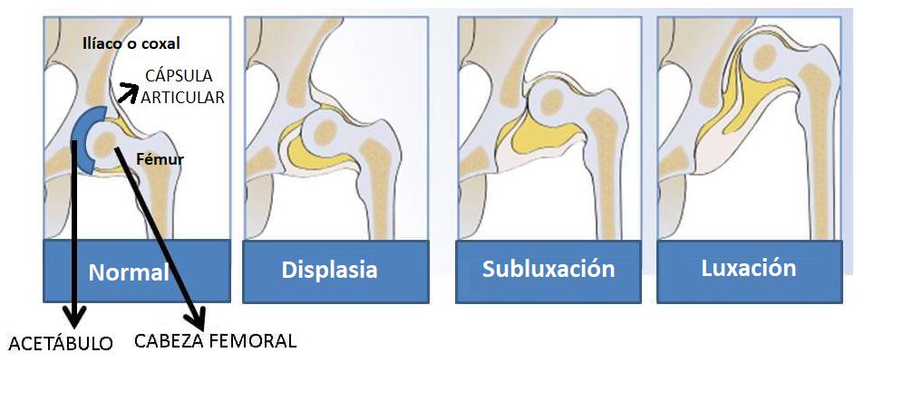 Tipos de displasia de cadera