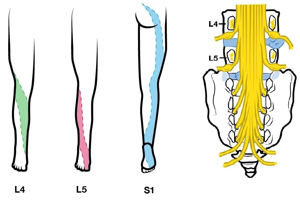 patrones de dolor neuropatico