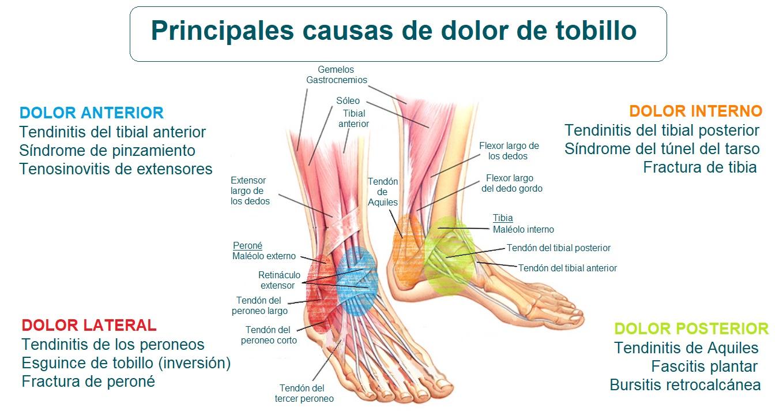 Causas del dolor de tobillo