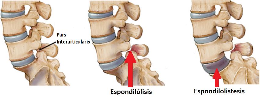 espondilolisis y espondilolistesis