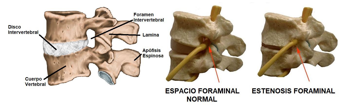 anatomía de la estenosis foraminal