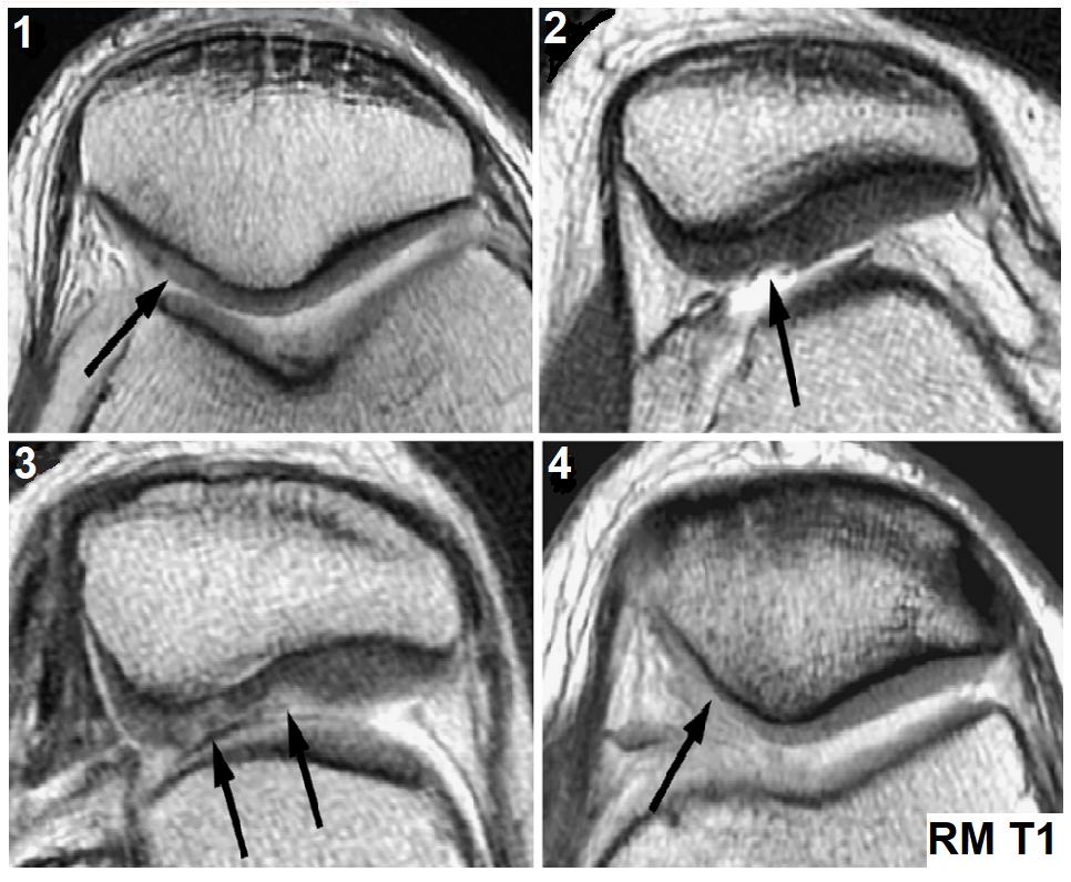 etapas o fases de la condromalacia rotuliana
