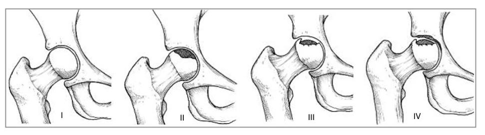 etapas de la necrosis avascular de la cadera