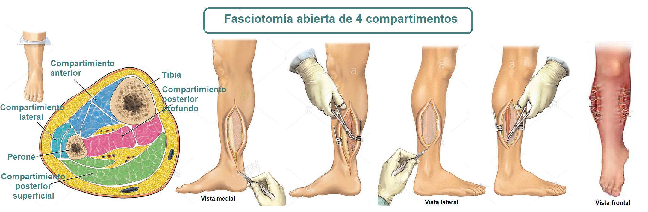 Fasciotomia