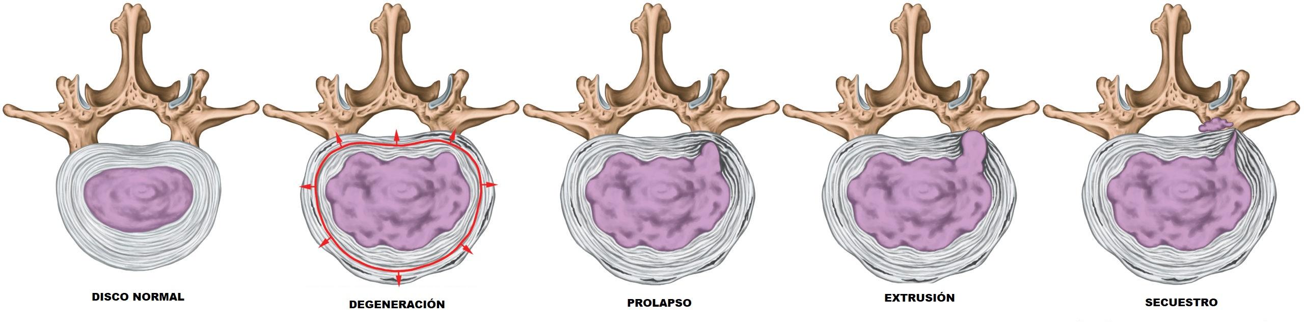 fases de degeneracion de la hernia discal