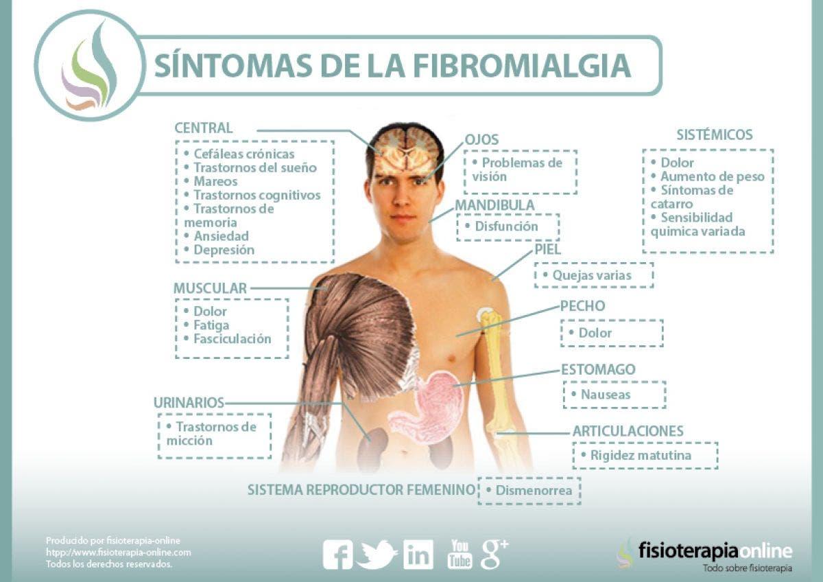 sintomas de la fibromialgia