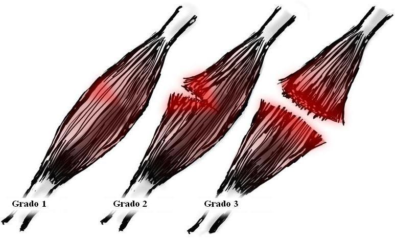 Desgarro muscular rotura muscular