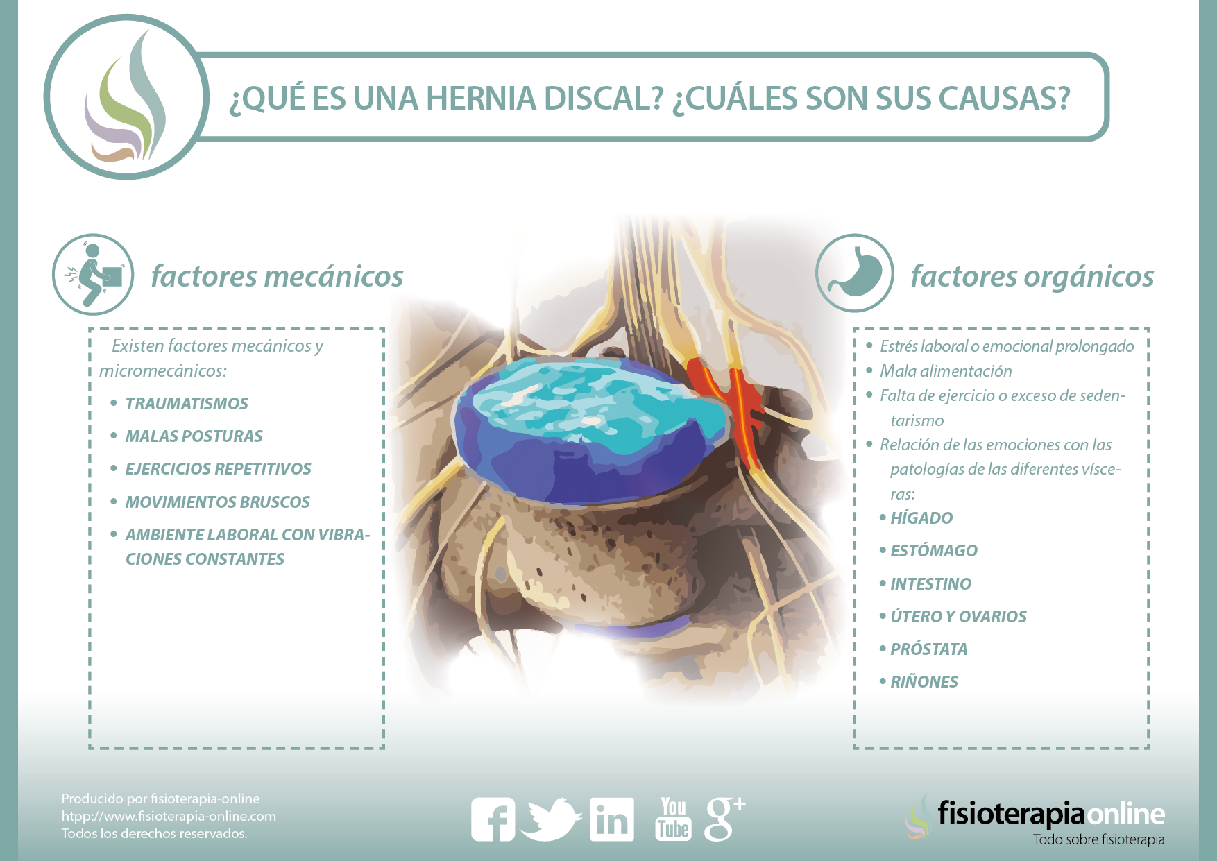 hernia discal causas y mentiras