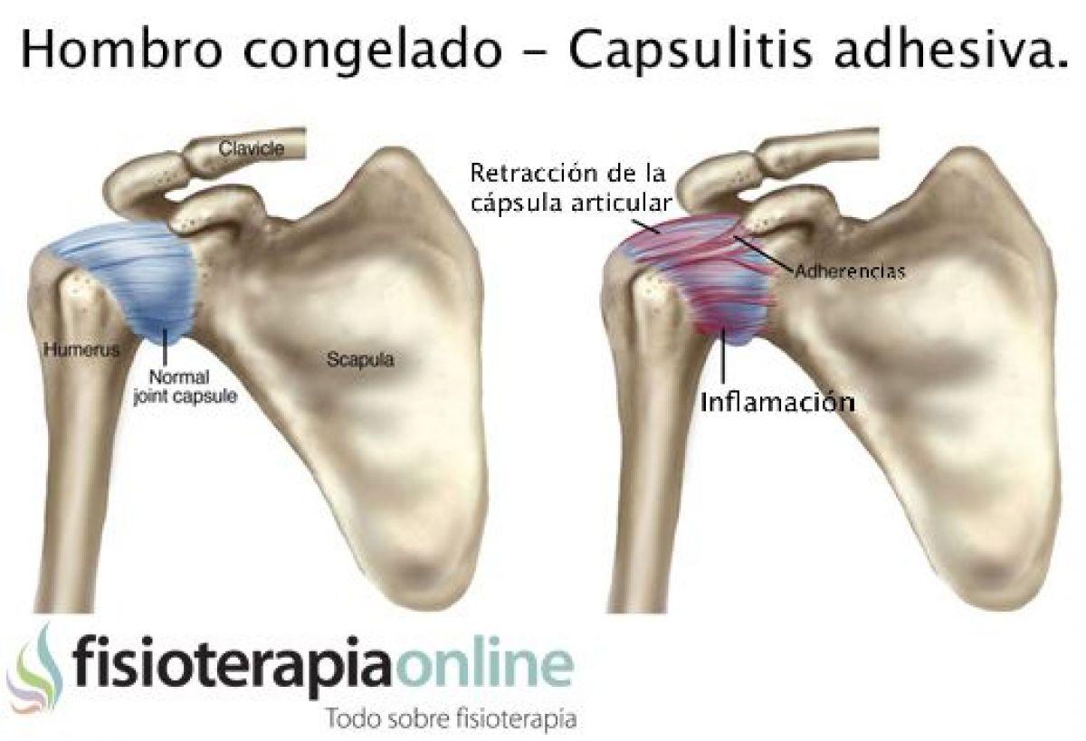 hombro congelado o capsulitis adhesiva